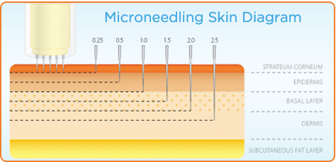 Skin layers showing the depth microneedling goes into the skin