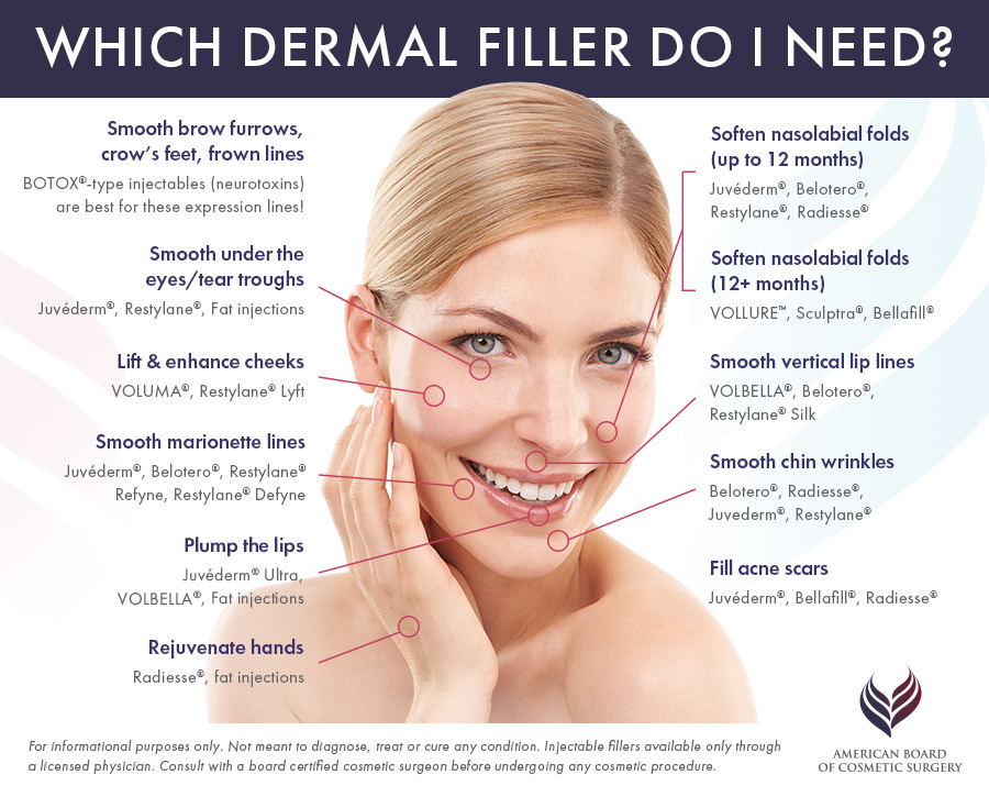 A womans face with information about the different fillers