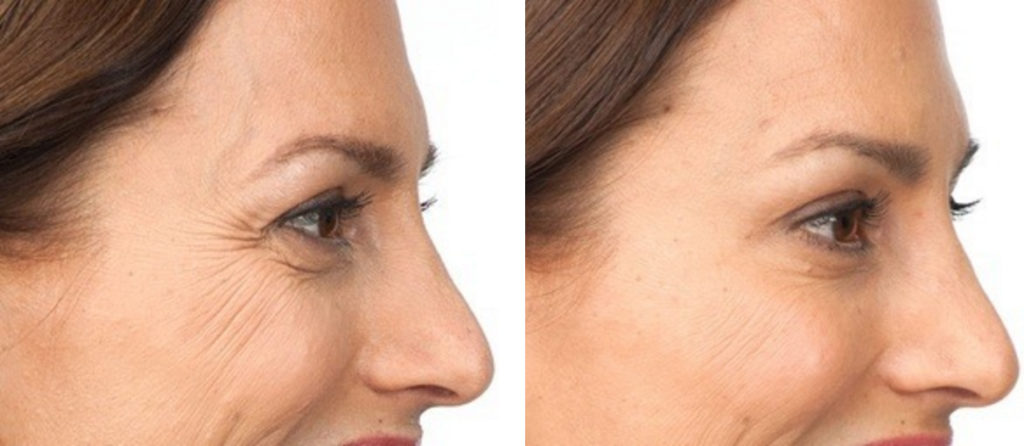 botox: before and after (side)