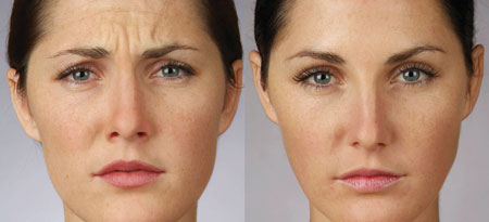botox: before and after (front)