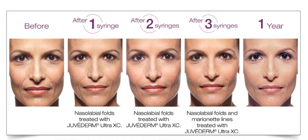a woman's face treated with Juvéderm over the course of a year