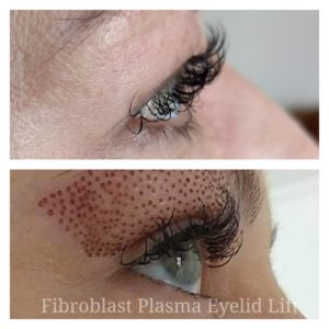 Before and after Fibroblast Plasma Eyelid Lift