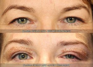 Before and after Plasma Eyelid Lift