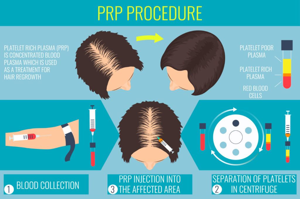 Platelet rich plasma injection. PRP therapy process. Male hair loss treatment infographics. Injection. Meso therapy. Hair growth stimulation.