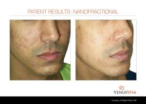 acne-scars-fitz3-ba