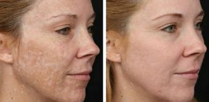 hyperpigmentation-before-after-venus-versa-boca