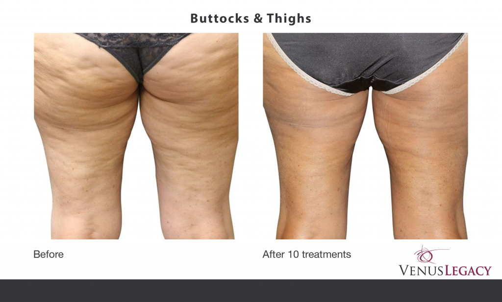 Body Contouring results