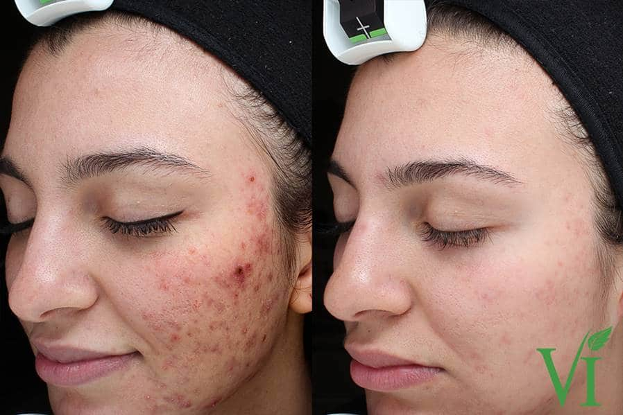 Acne-and-Acne-Scarring