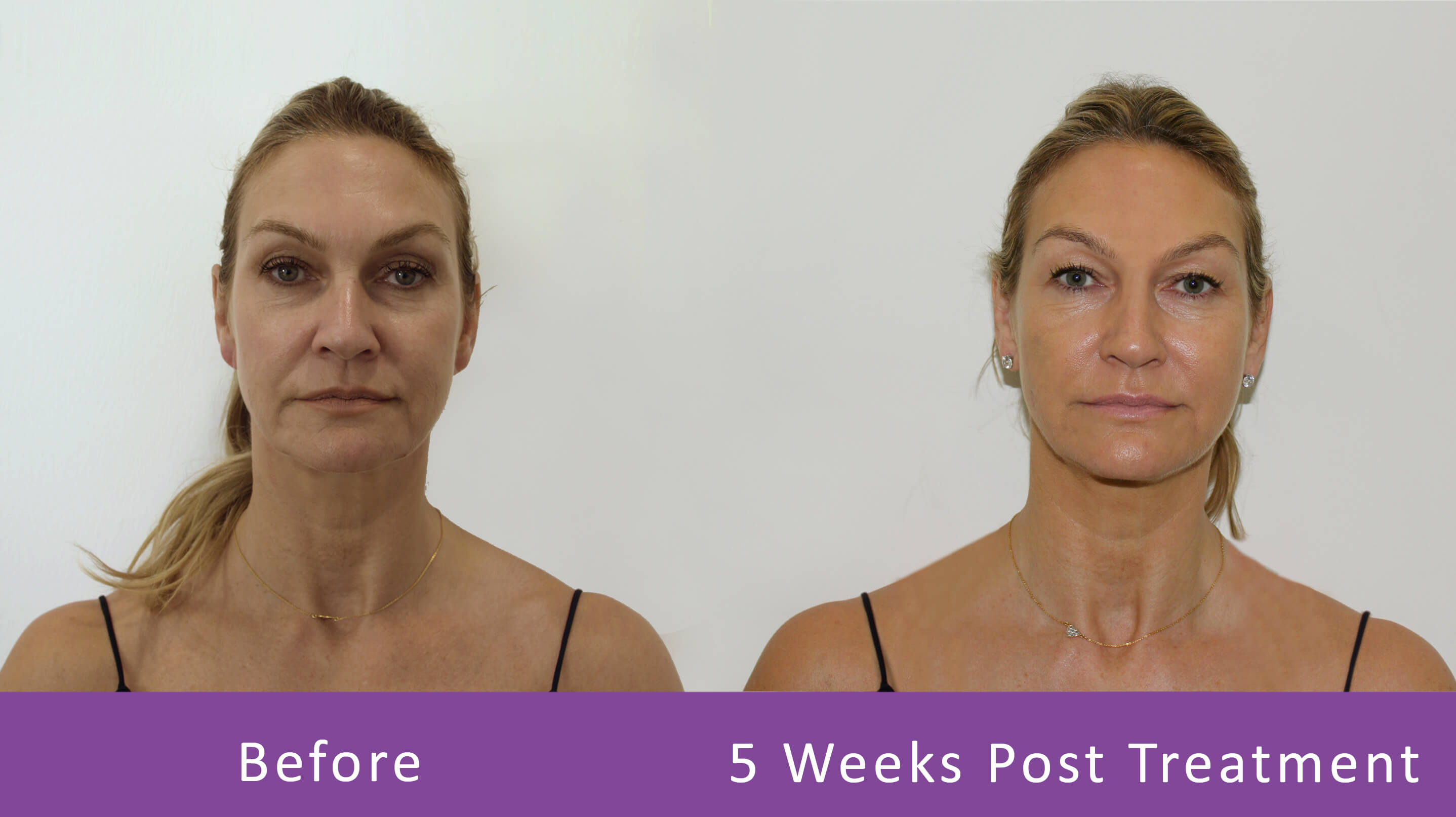 Before-After-5-weeks-treatment-1
