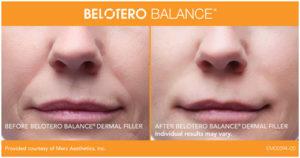 BELOTERO_BandA_Full_Front_01