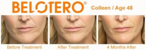 Belotero-Before-and-After-in-Houston-Skin-101