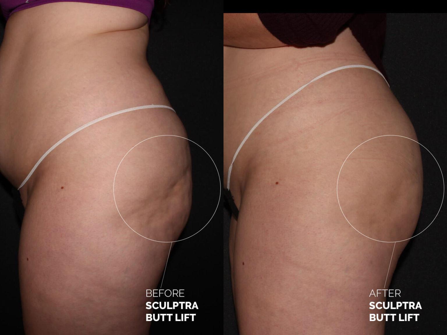 sculptra-butt-lift-before-after