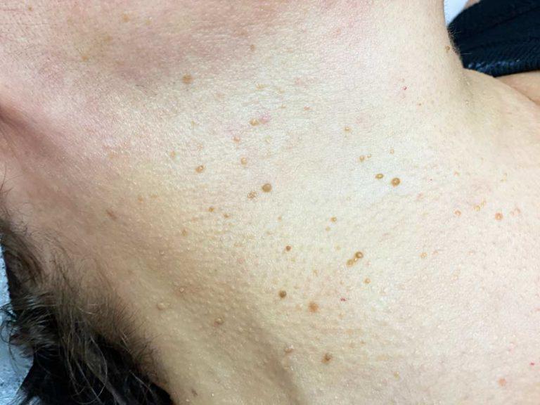 skin-tag-removal-vs-medspa